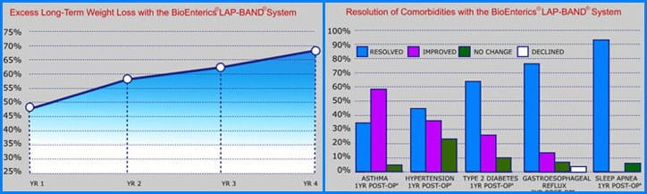 Remarkable and Beneficial Results with the aid of the LAP-BAND Surgery