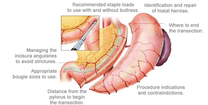 Gastric Sleeve Anatomy Info