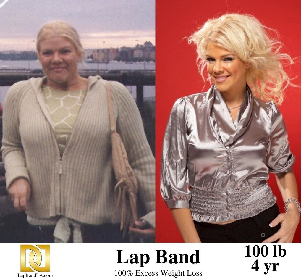 Tanya's Before and After Photo after 4 years of success using the Lap-Band