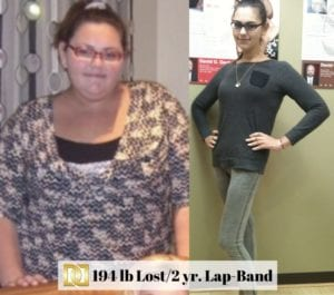 AT-Before-And-After-Lap-Band-Surgery-Results-At-Davtyan-Medical-Weight-Loss-And-Wellness-In-Los-Angeles-Glendale-Beverly-Hills-Rancho-Cucamonga