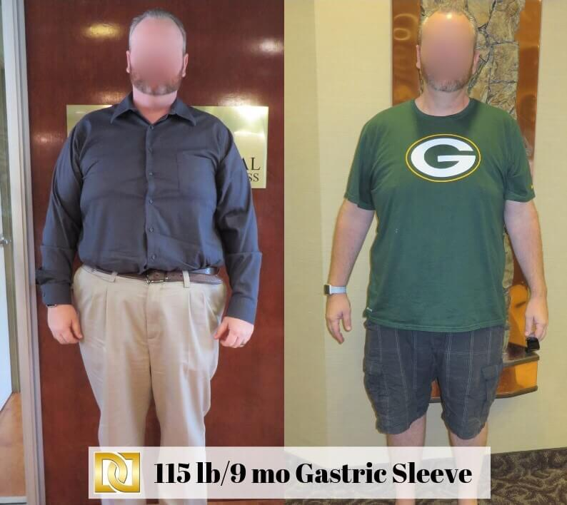Bariatric-Surgery-Before-And-After-Gastric-Sleeve-At-Davtyan-Medical-Weight-Loss-And-Wellness-LA-Rancho-Cucamonga-Glendale-Beverly-Hills