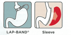 Lap Band and Sleeve