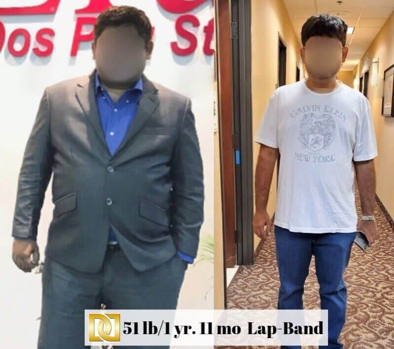 Lap Band Surgery in Los Angeles