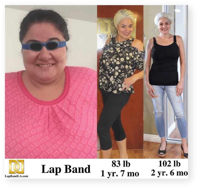 Lap band surgery before and after