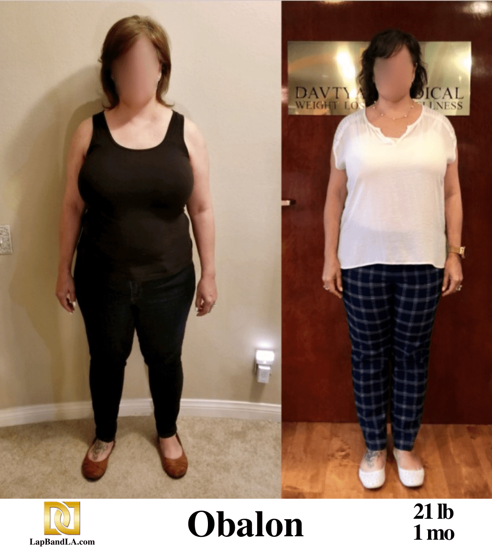 Gastric Balloon Before and After