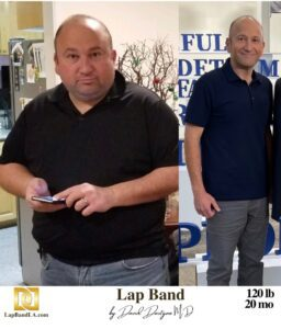 """<span class=""""hide_09"""">Bariatric Surgery Patient Testimonial - Lucy </span> Lap-Band Los Angeles"""